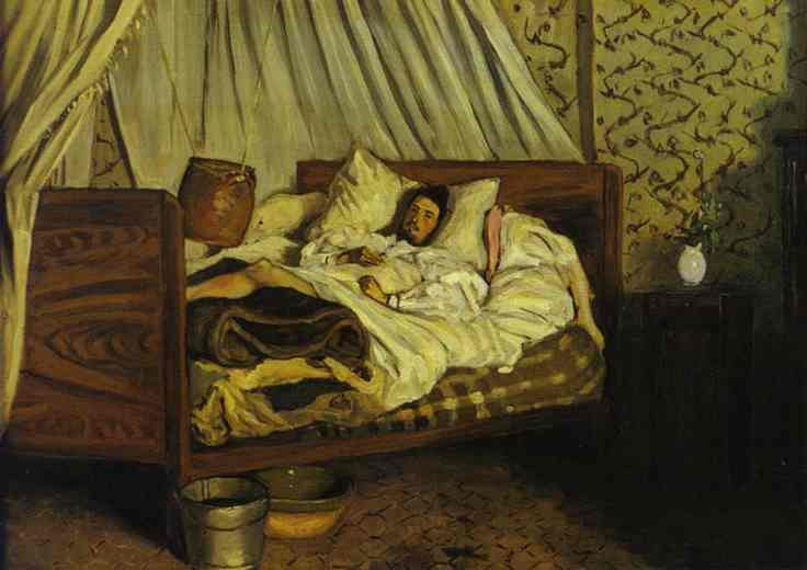 The Improvised Field Hospital Monet After His Accident At The Inn Of Chailly 1865 | Frederic Bazzille | Oil Painting