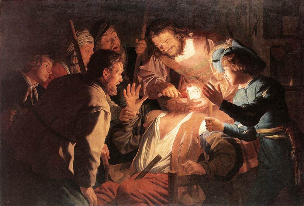 The Dentist 1622 | Gerrit van Honthorst | oil painting
