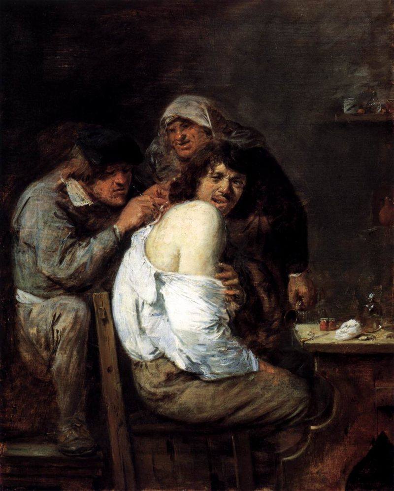 The Back Operation 1635-36 | Adriaen Brouwer | oil painting