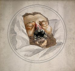 Eroded and Gangrenous Nasal Passage due to Syphillis | Alphonse Legros | Oil Painting